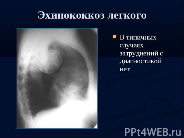 Эхинококкоз легкого В типичных случаях затруднений с диагностикой нет