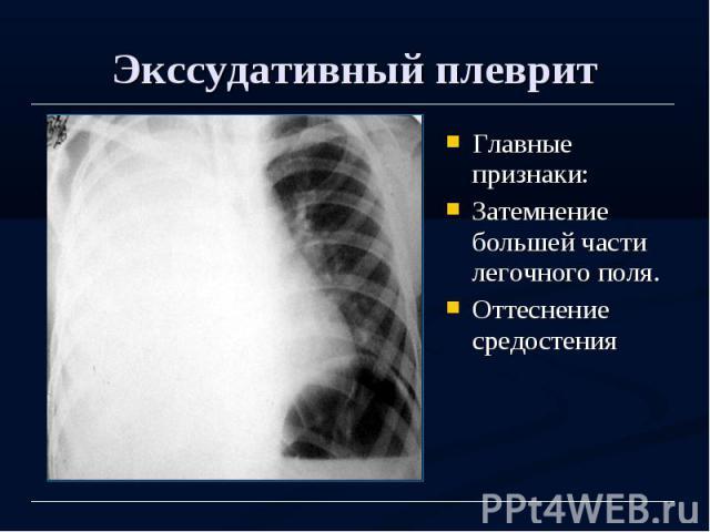 Экссудативный плеврит Главные признаки: Затемнение большей части легочного поля. Оттеснение средостения
