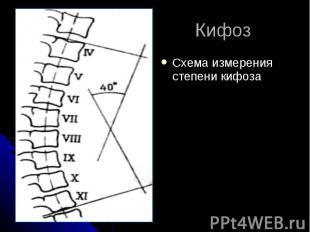 Кифоз Схема измерения степени кифоза