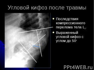 Угловой кифоз после травмы Последствия компрессионного перелома тела L1. Выражен