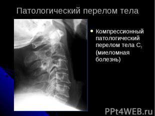 Патологический перелом тела Компрессионный патологический перелом тела С3 (миело