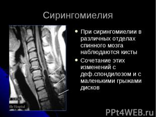 Сирингомиелия При сирингомиелии в различных отделах спинного мозга наблюдаются к