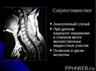Сирингомиелия Аналогичный случай При данном варианте поражения в спинном мозге м