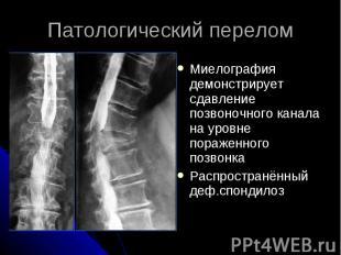 Патологический перелом Миелография демонстрирует сдавление позвоночного канала н