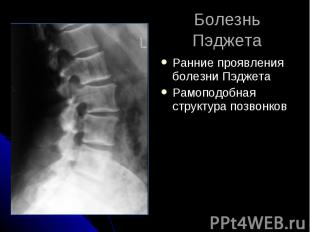 Болезнь Пэджета Ранние проявления болезни Пэджета Рамоподобная структура позвонк