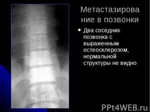 Метастазирование в позвонки Два соседних позвонка с выраженным остеосклерозом, н