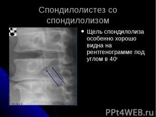 Спондилолистез со спондилолизом Щель спондилолиза особенно хорошо видна на рентг