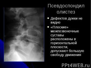 Псевдоспондилолистез Дефектов дужки не видно «Плоские» межпозвоночные суставы ра