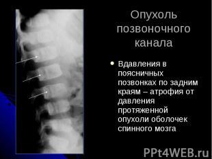 Опухоль позвоночного канала Вдавления в поясничных позвонках по задним краям – а