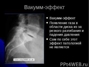 Вакумм-эффект Вакумм-эффект Появление газа в области диска из за резкого разгиба