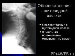 Обызвествления в щитовидной железе Обызвествления в щитовидной железе К болезням