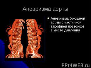 Аневризма аорты Аневризма брюшной аорты с частичной атрофией позвонков в месте д