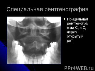 Специальная рентгенография Прицельная рентгенограмма С1 и С2 через открытый рот
