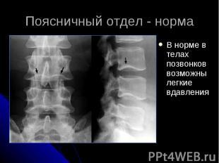 Поясничный отдел - норма В норме в телах позвонков возможны легкие вдавления