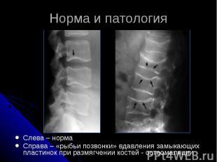 Норма и патология Слева – норма Справа – «рыбьи позвонки» вдавления замыкающих п