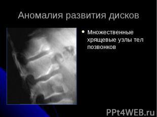 Аномалия развития дисков Множественные хрящевые узлы тел позвонков