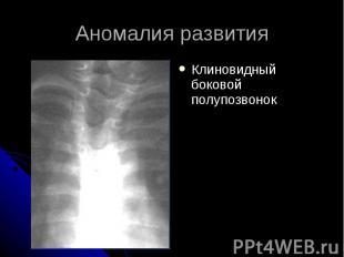 Аномалия развития Клиновидный боковой полупозвонок