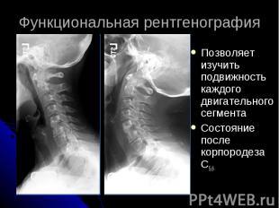 Функциональная рентгенография Позволяет изучить подвижность каждого двигательног