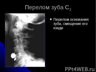 Перелом зуба С2 Перелом основания зуба, смещение его кзади