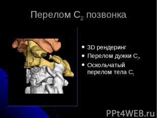Перелом С2 позвонка 3D рендеринг Перелом дужки С2, Оскольчатый перелом тела С3