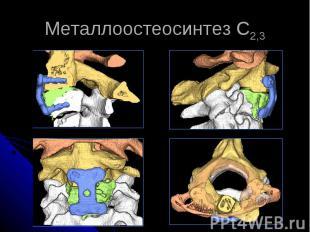 Металлоостеосинтез С2,3