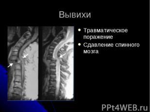 Вывихи Травматическое поражение Сдавление спинного мозга