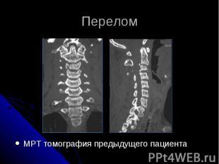 Перелом МРТ томография предыдущего пациента
