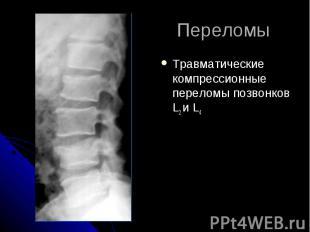 Переломы Травматические компрессионные переломы позвонков L2 и L4