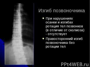 Изгиб позвоночника При нарушениях осанки и изгибах ротация тел позвонков (в отли