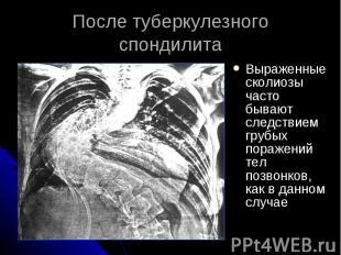 После туберкулезного спондилита Выраженные сколиозы часто бывают следствием груб