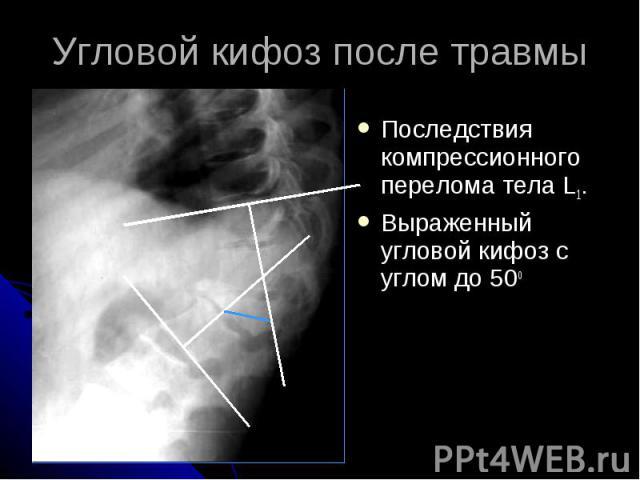 Угловой кифоз после травмы Последствия компрессионного перелома тела L1. Выраженный угловой кифоз с углом до 50о