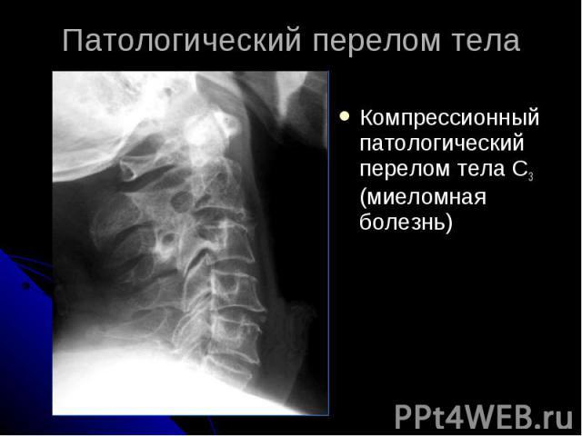 Патологический перелом тела Компрессионный патологический перелом тела С3 (миеломная болезнь)