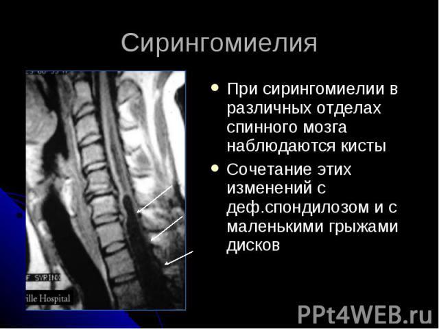 Сирингомиелия При сирингомиелии в различных отделах спинного мозга наблюдаются кисты Сочетание этих изменений с деф.спондилозом и с маленькими грыжами дисков