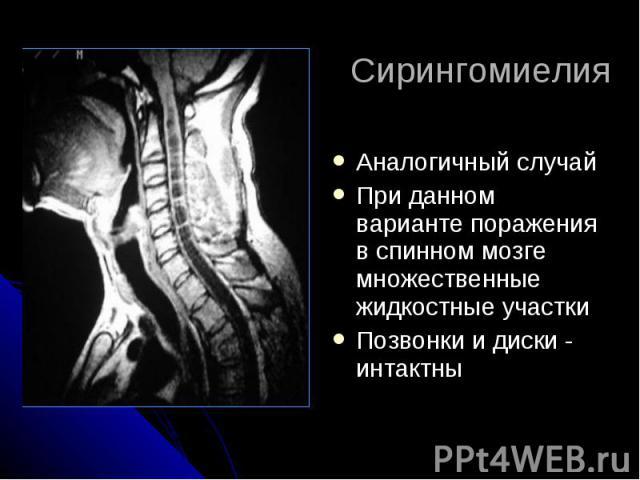 Сирингомиелия Аналогичный случай При данном варианте поражения в спинном мозге множественные жидкостные участки Позвонки и диски - интактны