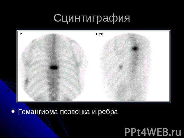 Сцинтиграфия Гемангиома позвонка и ребра