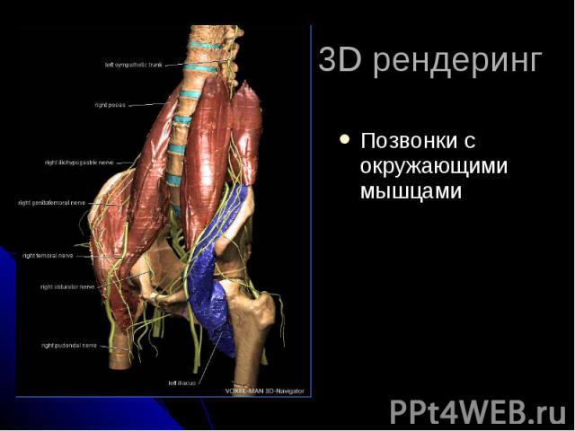 3D рендеринг Позвонки с окружающими мышцами