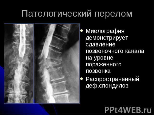 Патологический перелом Миелография демонстрирует сдавление позвоночного канала на уровне пораженного позвонка Распространённый деф.спондилоз