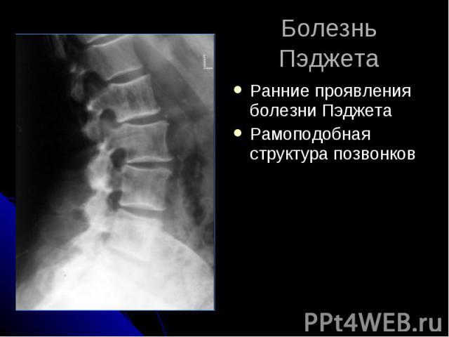 Болезнь Пэджета Ранние проявления болезни Пэджета Рамоподобная структура позвонков