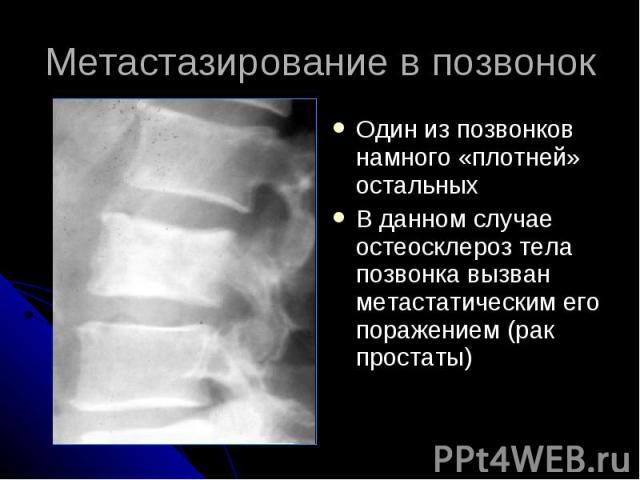 Метастазирование в позвонок Один из позвонков намного «плотней» остальных В данном случае остеосклероз тела позвонка вызван метастатическим его поражением (рак простаты)