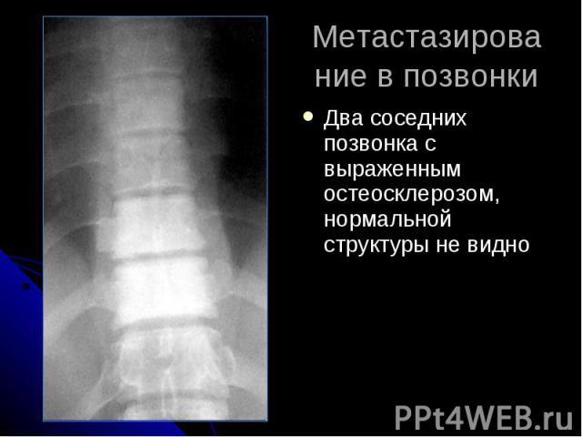 Метастазирование в позвонки Два соседних позвонка с выраженным остеосклерозом, нормальной структуры не видно