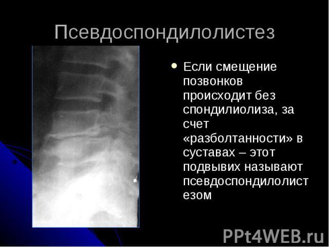 Псевдоспондилолистез Если смещение позвонков происходит без спондилиолиза, за счет «разболтанности» в суставах – этот подвывих называют псевдоспондилолистезом