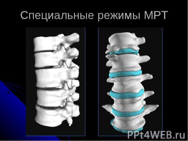 Специальные режимы МРТ
