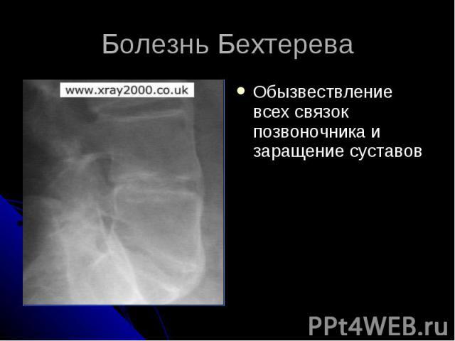 Болезнь Бехтерева Обызвествление всех связок позвоночника и заращение суставов