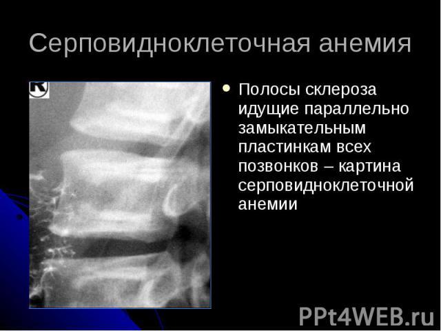Серповидноклеточная анемия Полосы склероза идущие параллельно замыкательным пластинкам всех позвонков – картина серповидноклеточной анемии