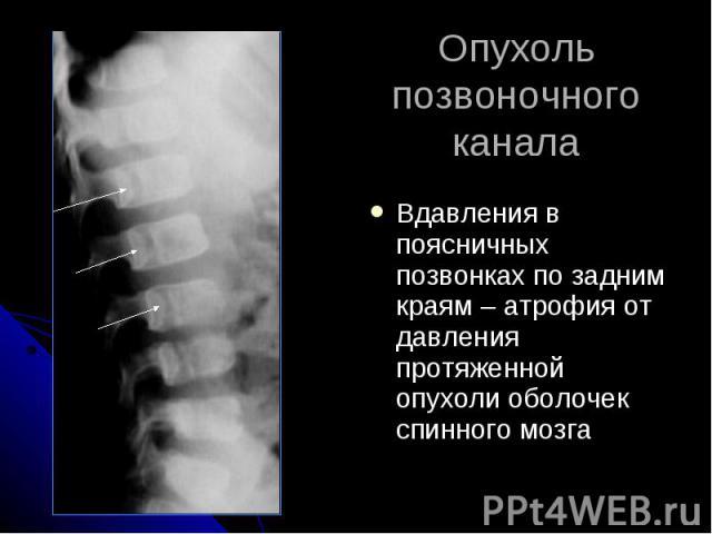 Опухоль позвоночного канала Вдавления в поясничных позвонках по задним краям – атрофия от давления протяженной опухоли оболочек спинного мозга