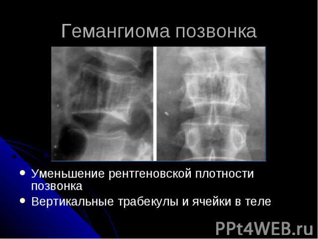 Гемангиома позвонка Уменьшение рентгеновской плотности позвонка Вертикальные трабекулы и ячейки в теле
