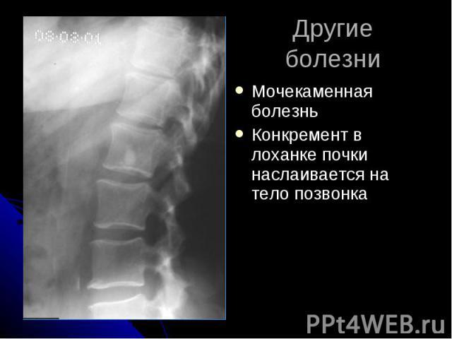 Другие болезни Мочекаменная болезнь Конкремент в лоханке почки наслаивается на тело позвонка