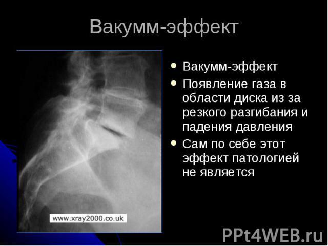 Вакумм-эффект Вакумм-эффект Появление газа в области диска из за резкого разгибания и падения давления Сам по себе этот эффект патологией не является