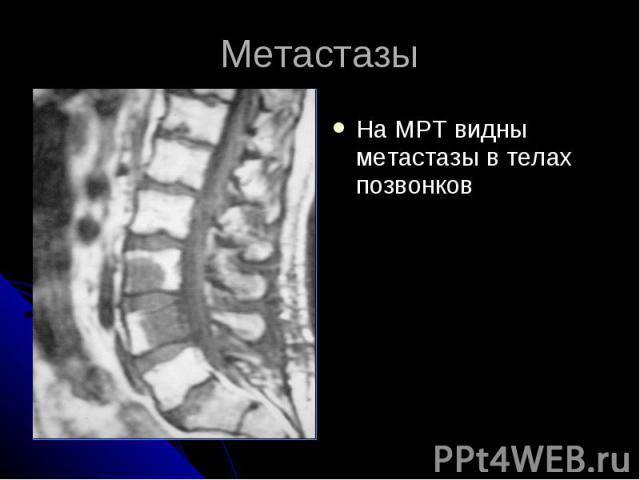 Метастазы На МРТ видны метастазы в телах позвонков