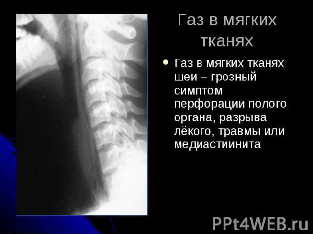 Газ в мягких тканях Газ в мягких тканях шеи – грозный симптом перфорации полого органа, разрыва лёкого, травмы или медиастиинита